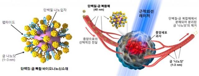 암세포에만 달라 붙는 금 나노입자를 체내에 주사한 뒤 레이저로 나노입자를 태우면 암세포가 사멸된다. - 고려대 제공